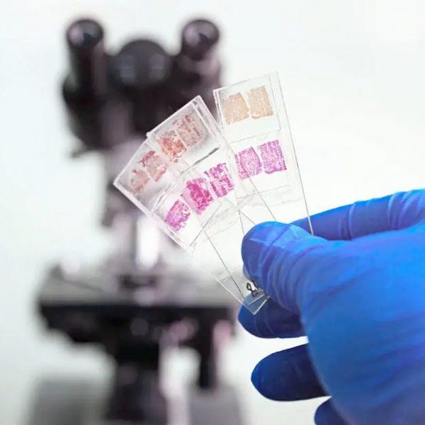 Patoloji Laboratuvarı Sarf Malzemeleri